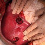 Ηπατεκτομή Μεταστατικού Καρκίνου Ήπατος Σπύρος Δελής
