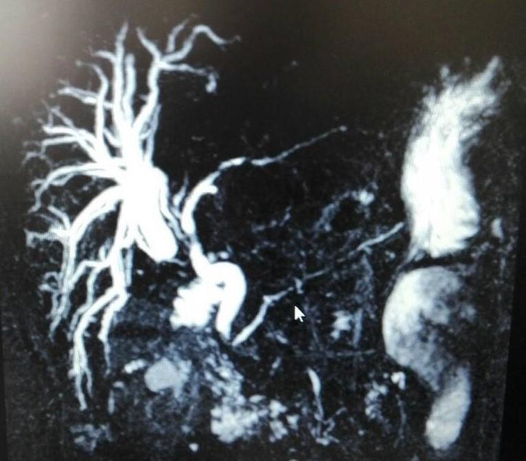 Ιατρογενής κάκωση από χολοκυστεκτομή