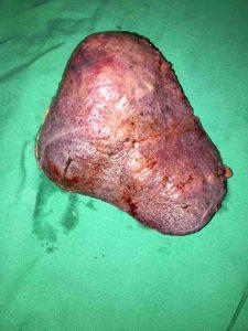 Δεξιά Ηπατεκτομή μετά από Εμβολισμό Πυλαίας Φλέβας