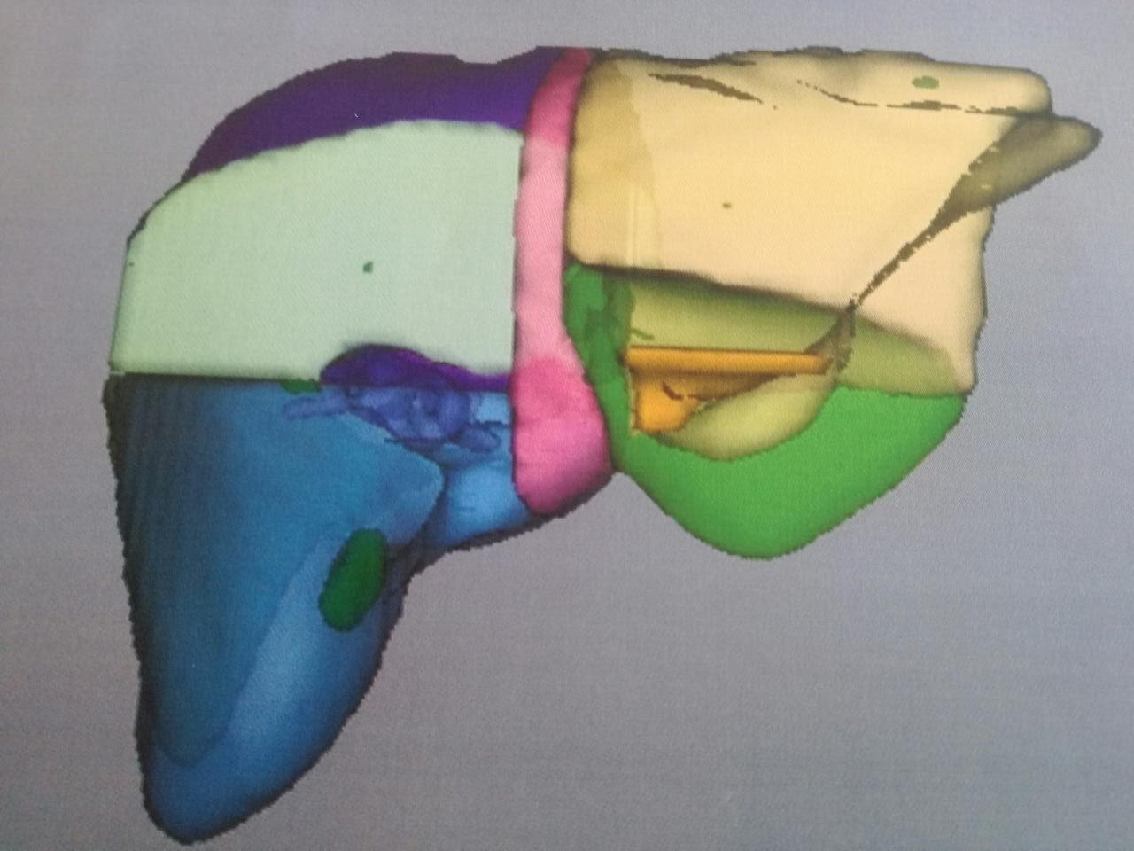 Ογκομετρία μετά τον Εμβολισμό της Πυλαίας Φλέβας