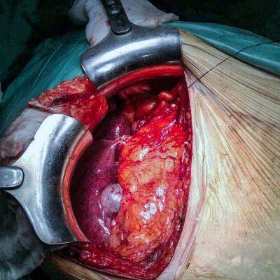 Ηπατικές Μεταστάσεις Χειρουργείο Μετά από Χημειοθεραπεία