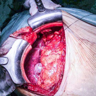 Ηπατοτοξικότητα μετά από Προεγχειρητική Χημειοθεραπεία - Blue Liver Effect