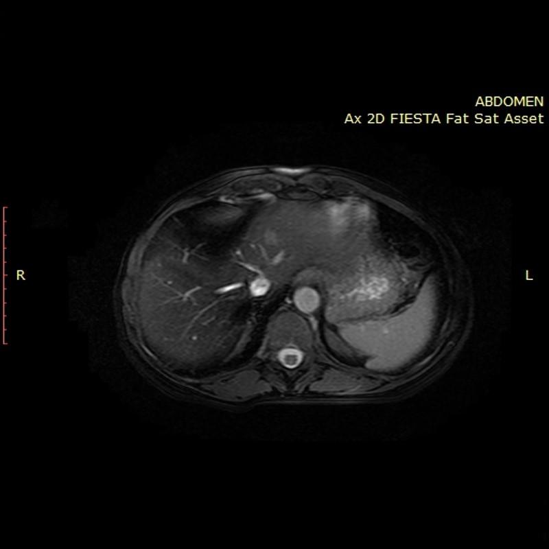 καρκίνος παχέος εντερου με ηπατικες μεταστασεις